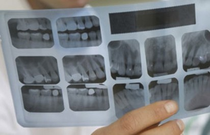 EPSP de chirurgie dentaire Mohamed Rédha-Aslaoui de Bir Mourad Raïs: les patients invités à acheter des clichés pour les radios