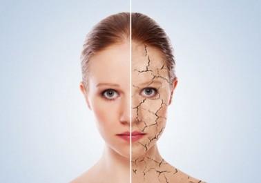 5 Remèdes anti-peau sèche