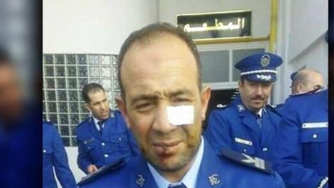 Après la tentative d'Attentat-Suicide ratée: Deux cadres de la Dgsn à Constantine