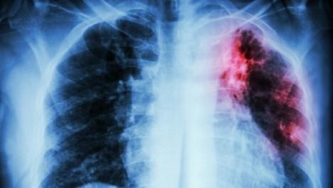 L'incidence de la tuberculose en «baisse significative» dans l'Ouest du pays