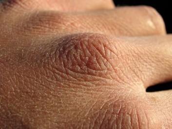 Solution naturelle pour soigner les mains gercées et sèches