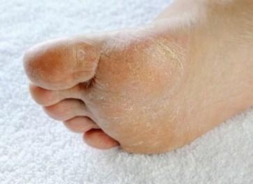 Les pieds secs et fendillés