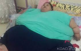 égypte : la femme la plus grosse au monde a encore perdu 150 kilos