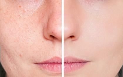 Un masque pour éliminer boutons et traces d'acné
