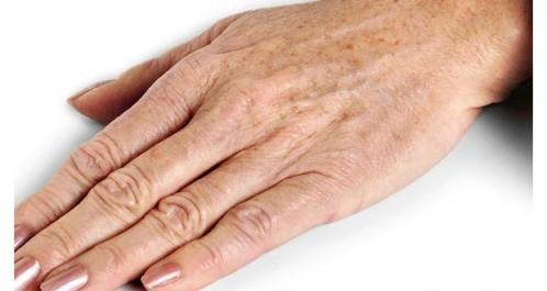 Beauté:  Taches de vieillesse, explications et astuces