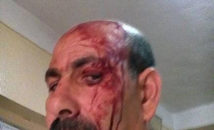 Un directeur d'école primaire agressé dans son établissement à Khenchela